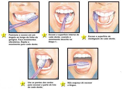 Como escovar os dentes corretamente
